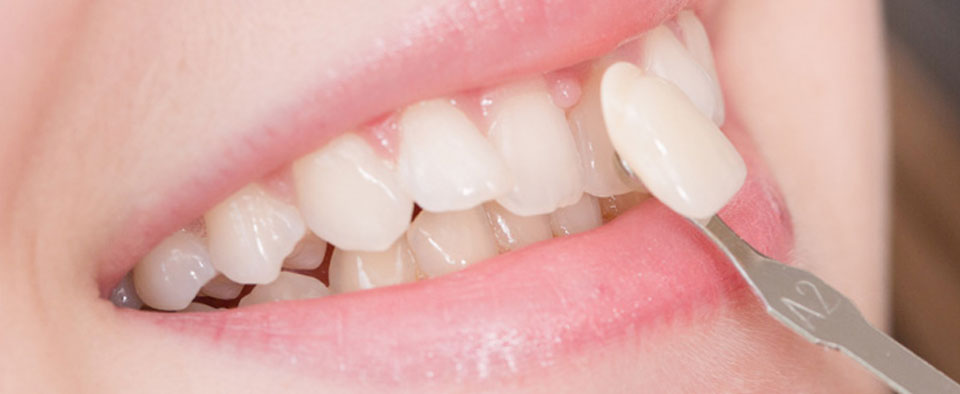 Porcelain Teeth Veneers Sydney