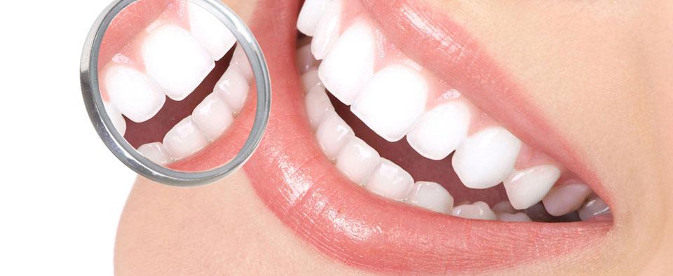 Zoom teeth whitening sydney